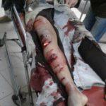 عاجل:مواجهة دامية خارج اسوار الحي الجامعي بالرشيدية